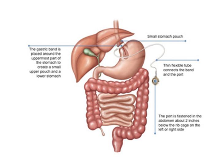Adjustable Gastric Banding India | Obesity & Metabolic Surgery ...